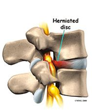Are you suffering from Herniated Disc disease? Our Pain Relief Centers offers perfect treatment for Herniated Disc. This is happens when the liquid center of the disc bulges outwards, tearing the external ring of fibers, extruding into the spinal canal, and compressing a nerve root. For More Information visit us: http://www.painfreeinaz.com/herniated-discs.php