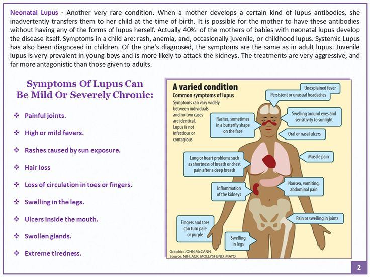 lupus a chronic autoimmune disease essay What is lupus lupus is an autoimmune disease approaches may help you cope or reduce some of the stress associated with living with a chronic illness.