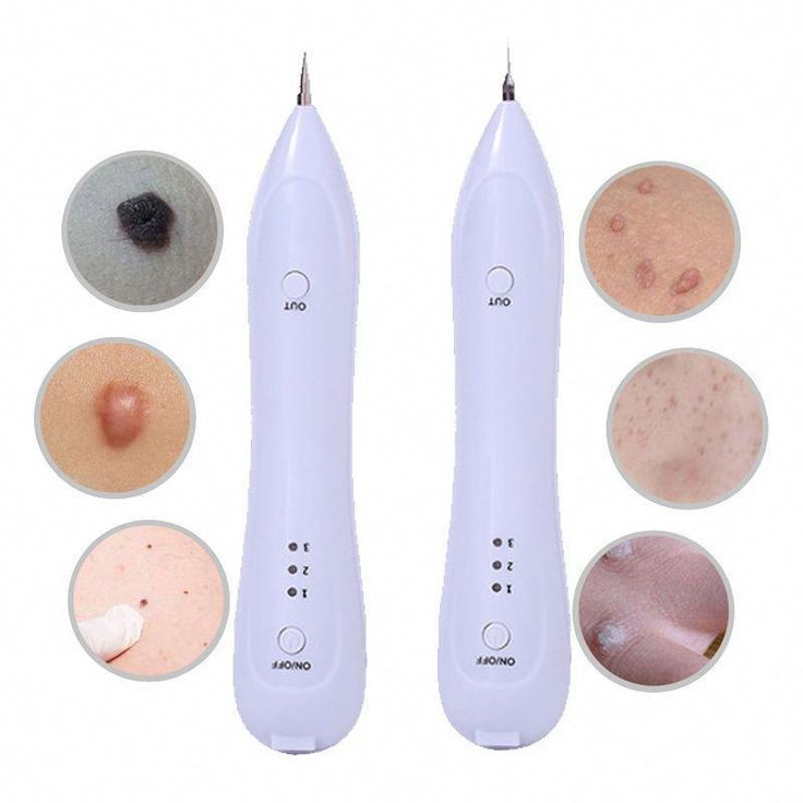 Electric laser face wart tag tattoo removal pen skin