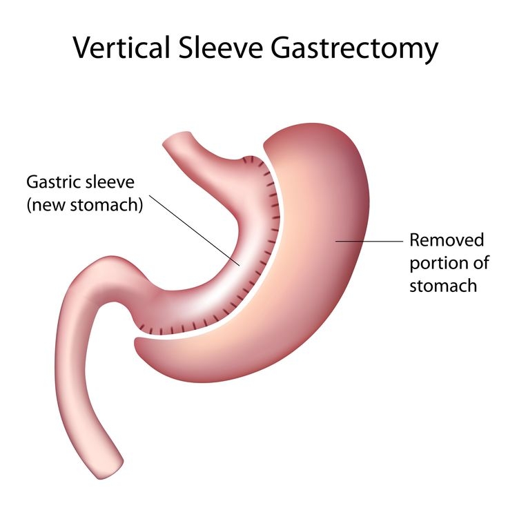 What Is Vertical Sleeve Gastrectomy?