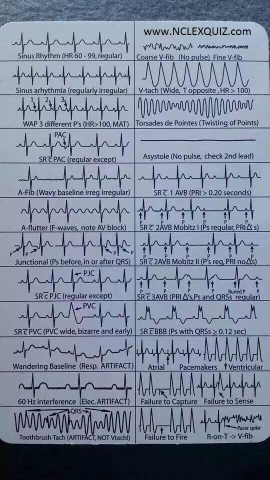 EKG Heart Rhythms Cheat Sheet