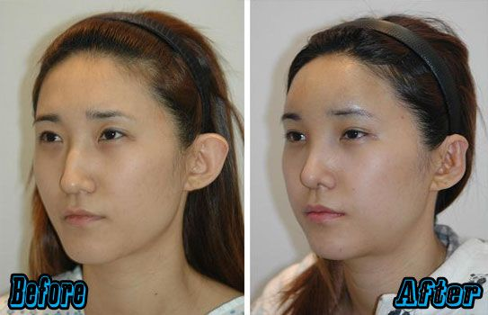 Forehead Augmentation | http://plasticsurgeryfact.com/south-korean-plastic-surgery-cost-and-procedures/