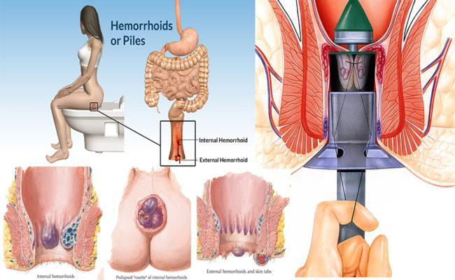 Pin By اسعار الادوية On أمراض وعلاجات Hemorrhoids Treatment Hemorrhoids Treatment
