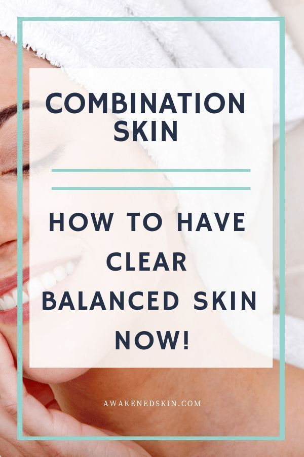 Combination Skin: How To Have Clear Balanced Skin Now!