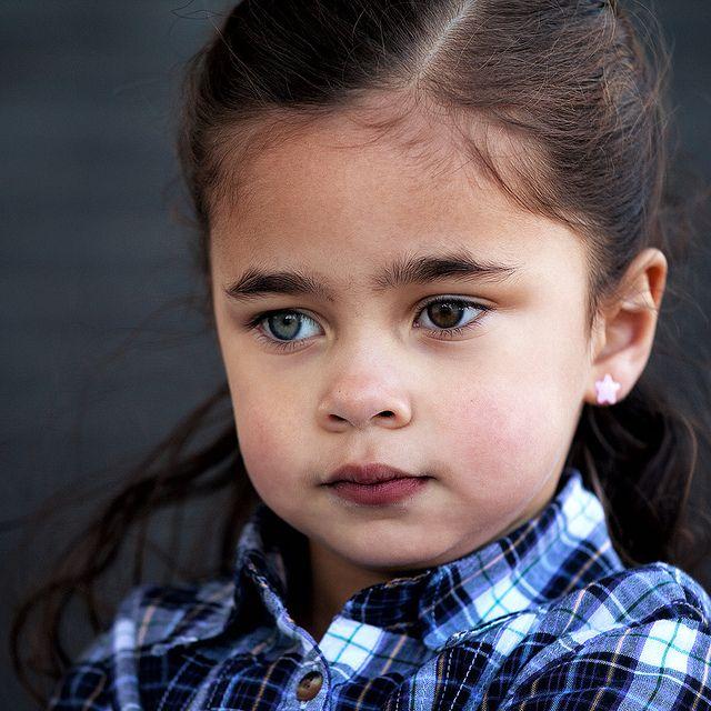 Algunas personas tienen un ojo de color diferente. Esta condición se llama heterocromía. Se da con poca frecuencia y puede presentarse desde el nacimiento o adquirirse con el paso del tiempo.