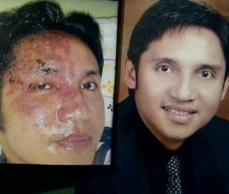 Before After using Luminesce - Forever Young with Jeunesse Global