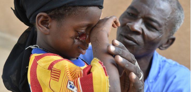NIGER. Le noma, maladie de la misère qui dévore le visage des enfants. Une gingivite au départ,  nécrose, gangrène voire dc 72h après...