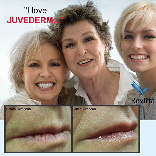 Refresh and Beautify Your Lips with Cosmetic Lip Injections at #RevittaCosmeticClinic | #Manhattan and #Brooklyn | 212.535.1201 | 718.743.5616 | www.revitta.com | #lips #beauty #juvederm #NewYork #PlumpLips #FullLips #InjectLips #skin #face #BeautyShots #LipLines #JuvedermLips #style #love #kiss #wrinkles #cosmetic #filler #followme #tagforlikes #instadaily #instamood #photooftheday #picoftheday #instalike #cool #igdaily