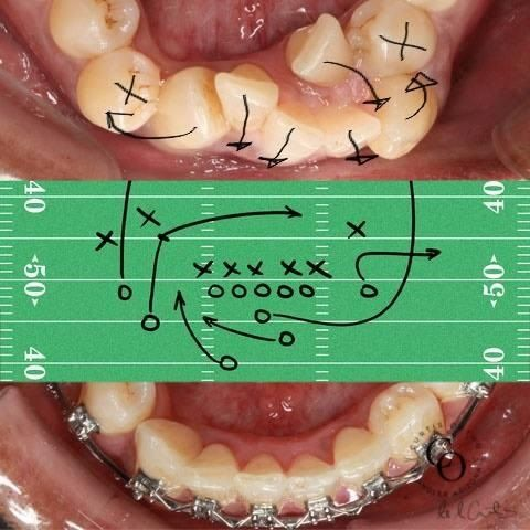 Dentaltown - Just another perfectly executed play out of the Orthodontic playbook.