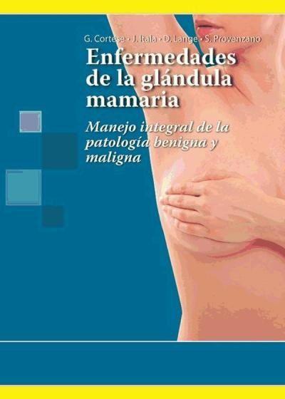 Enfermedades de la glándula mamaria: manejo integral de la patología benigna y maligna. Barcelona: Panamericana; 2014. http://www.medicapanamericana.com/Libros/Libro/4460/Enfermedades-de-la-glandula-mamaria.html