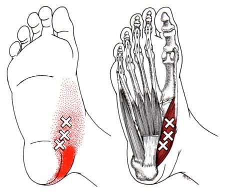 Abductor Hallucis | The Trigger Point & Referred Pain Guide