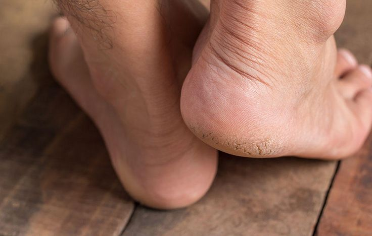 4 Ways To Fix Your Cracked Heels At Home  http://www.prevention.com/beauty/4-ways-to-fix-your-cracked-heels-at-home?utm_source=prevention.com