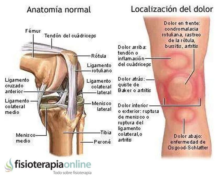 Los patrones del dolor de rodilla o gonalgia y las lesiones mas comunes