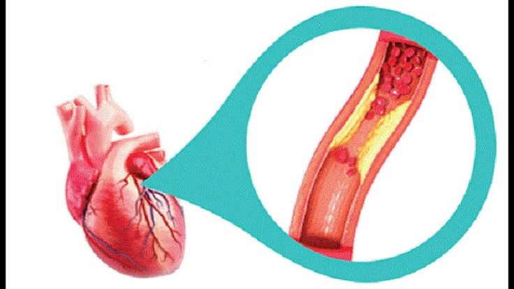 Coronary Arteries Cleanse With Only 3 Ingredients Home Health Plus Coronary Arteries Cleanse With Only 3 Ingredients Home Health Plus The conduits have vital part in our body and that is to transport the supplements and oxygen to the heart and each other essential organ in our life form. Along these lines if jump at the chance to have great wellbeing you should keep them clean. The eating routine assumes an enormous part in the event that you jump at the chance to accomplish this. Prepared…