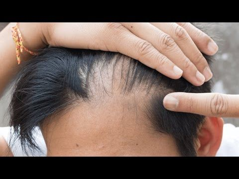 How To Use Castor Oil For Hair Growth | Hair Care Tips