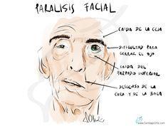 PARÁLISIS FACIAL La parálisis facial es una enfermedad en la que se paralizan los músculos de la mitad de la cara, este problema provoca una asimetría en la cara de los pacientes muy evidente, así como problemas a nivel del ojo, que no podrá cerrarse completamente (sequedad ocular con formación de úlceras corneales dolorosas que pueden llegar a ser graves) y de la boca (dificultad para hablar, comer y beber).