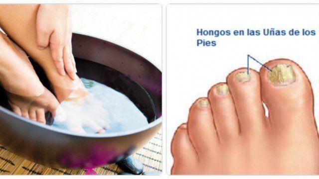 Los hongos en las uñas aparecen con frecuencia y es provocada por varios factores, tales como el uso de sudorosos calcetines, calzado, o no ...