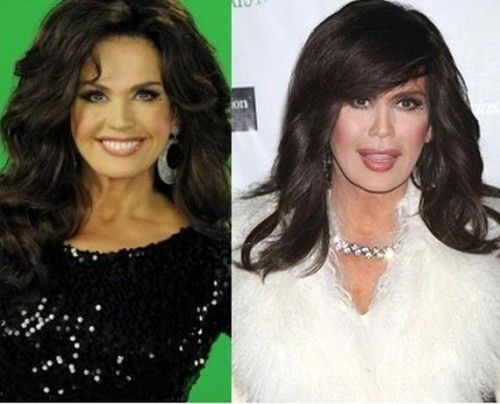 Marie Osmond Plastic Surgery 1 500x404 Marie Osmond Plastic Surgery Before and After Photos