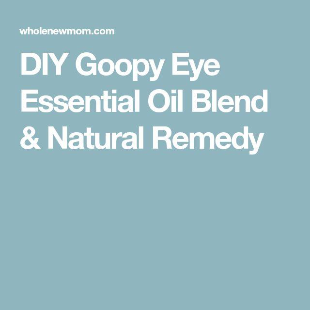 DIY Goopy Eye Essential Oil Blend & Natural Remedy