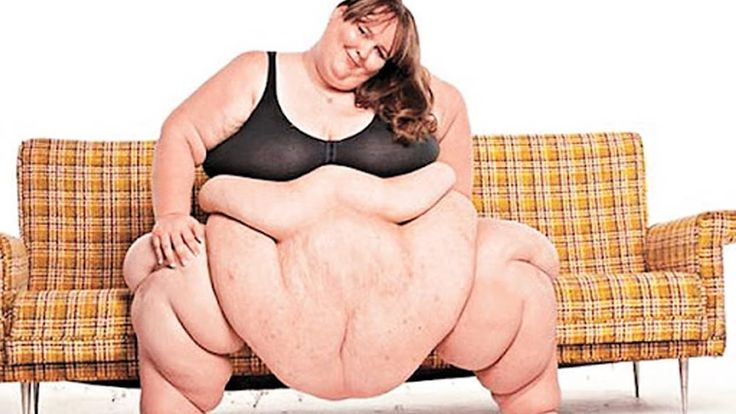 Top 5 Obese People in the World! - http://novabuzzfeed.tumblr.com/157131279574