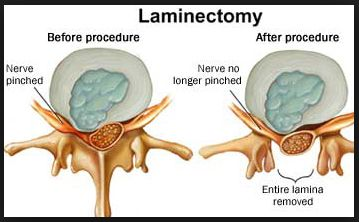 What is a Lumbar Laminectomy?  They will remove the center of my backbone on three vertebrae to relieve  pinching of my spinal cord. | Repinned by @michaelgleiber