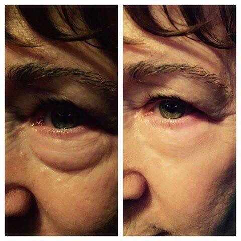 Jeunesse instantly ageless works in 2 minutes! Ahhhh-mazing results.  http://www.skygazer.jeunesseglobal.com/products.aspx?p=INSTANTLY_AGELESS