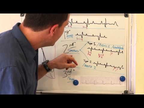 This guy is fantastic! Great explanation of the different types of heart blocks. So easy to understand now!