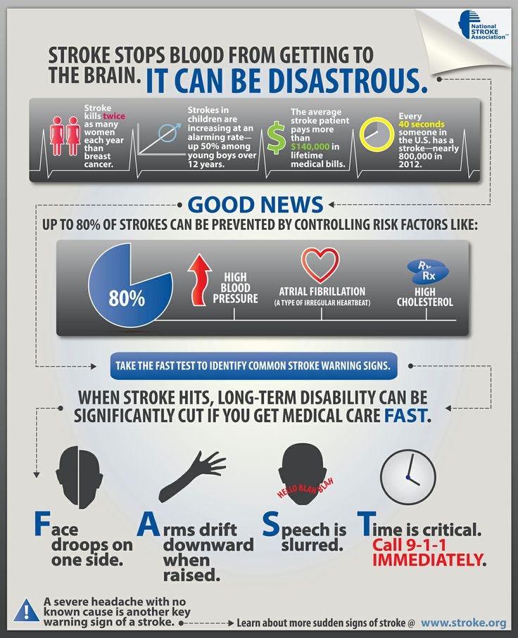 235 best signs of a stroke images on pinterest recipes food and national stroke awareness day signs of a stroke fast action could fandeluxe Gallery