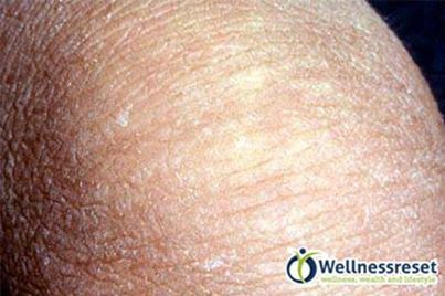 Do you have fish scale legs ichthyosis vulgaris is a for Fish scale disease