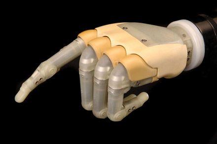 Prothèse de main Touch Bionics : Prothèse qui reproduit le fonctionnement de la main ; des électrodes permettent de capter les signaux générés par les muscles, afin de contrôler la prothèse.