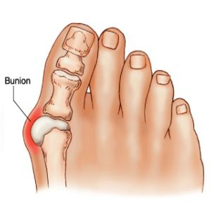 Natural Cures For Bunions - Effective Ways To Treat Bunions   Home Remedies, Natural Remedy