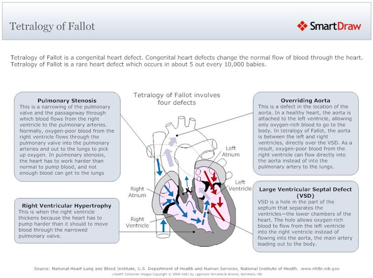 tetrology of fallot term paper Since a normal circulation is produced by the tetralogy of fallot repair procedure, long-term cardiac function is usually excellent however, the repair does usually leave the child with a leaky (insufficient) pulmonary valve.