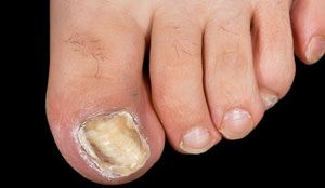 Fungal nail infection - NHS Choices.  Please visit www.toenailfungus.co.uk for a homeopathic remedy.
