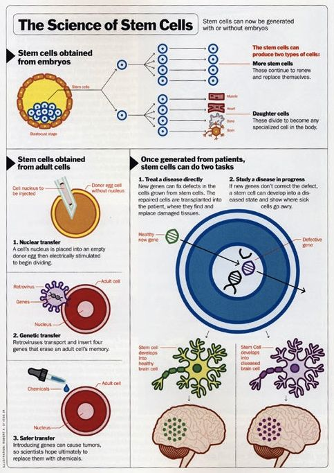 Stem cells infographic