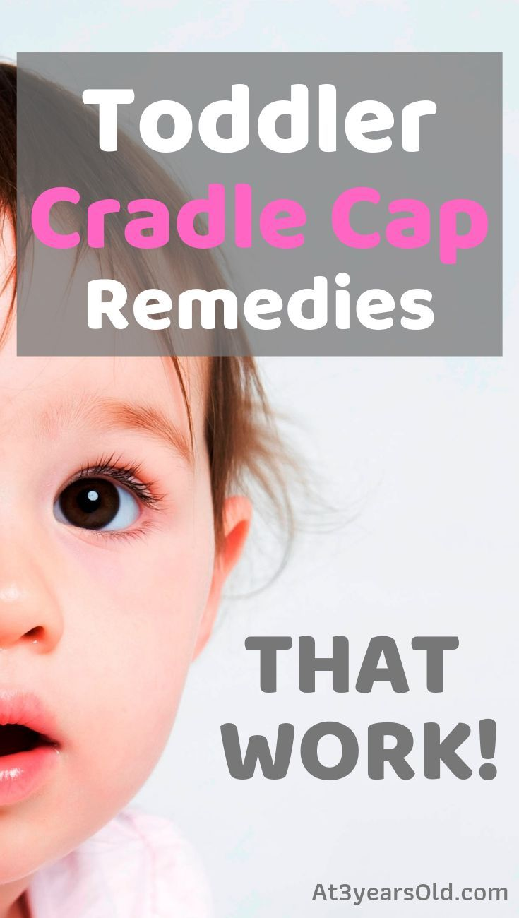 Toddler Cradle Cap Remedies