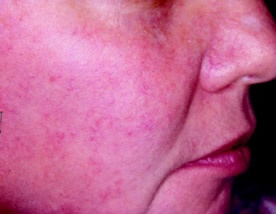 COM: SKIN CANCER BLUE LIGHT TREATMENT   Improvement Of Sun Damage And Skin  Cancer Prevention? Yes. Levulan Photodynamic Therapy Using Bluu2026 | Pinterest