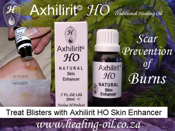 Axhilirit HO Skin Enhancing SCAR PREVENTION Minimize or negate scar and keloid formation of broken skin.  072 588 9090 www.healing-oil.co.za PayPal / PayFast / International Shipping info@healing-oil.co.za Facebook https://www.facebook.com/HealingOilProducts https://www.facebook.com/EczemaHealingoils