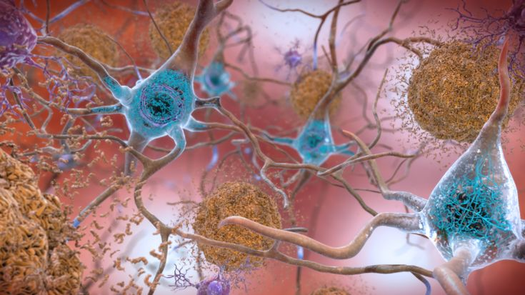 Data Detectives Shift Suspicions in Alzheimers from Usual Suspect to Inside Villain   Health and Medicine Science and Technology  Data Detectives Shift Suspicions in Alzheimers from Usual Suspect to Inside Villain  February 19 2018  Atlanta GA  Click image to enlarge  Artists rendering of amyloid-beta plaque (beige clumps) outside of neurons and neurofibrillarytangles (blue) inside of neurons. Credit: National Institute on Aging National Institutes of Health  The mass pursuit of a…