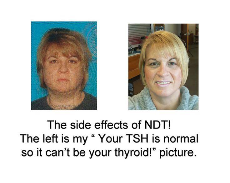Orlistat Side Effects Thyroid