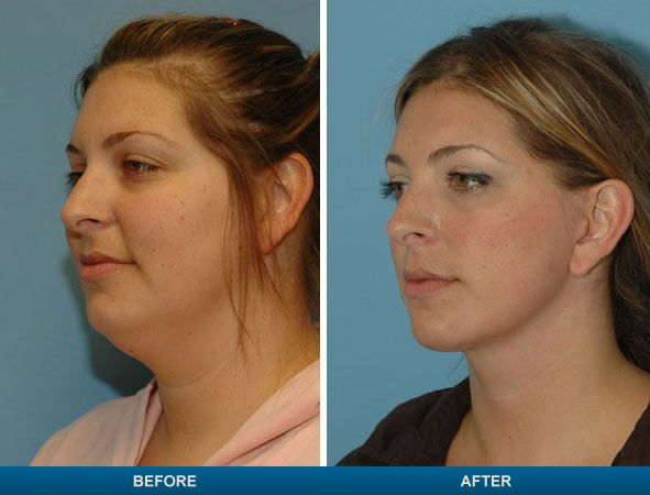 Why do you need a surgery for that double chin? Simple, check out this before and after picture http://www.neckdoctor.info/austin-double-chin-surgery-costs/ #doublechin #neckfat #weightloss
