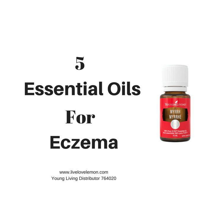 5 Essential Oils For Eczema