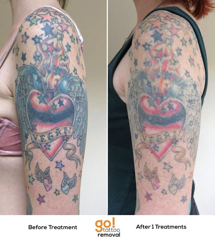 798 best tattoo removal in progress images on pinterest for Tattoo bandage removal