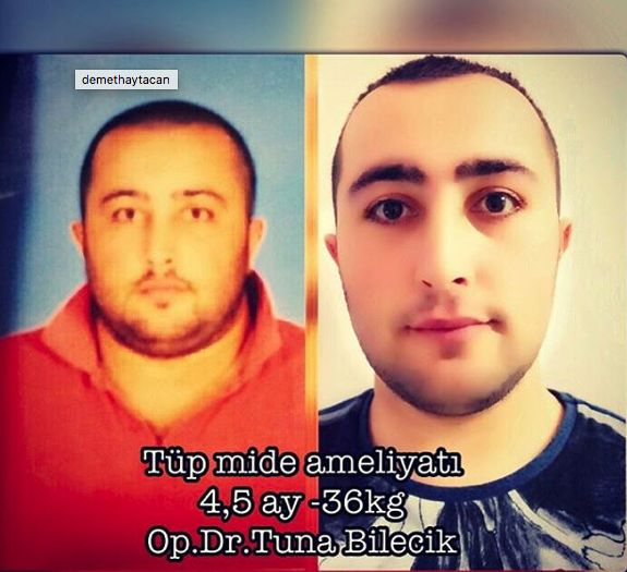 Dr.Tuna Bilecik - Tüp Mide Ameliyatı - Adana Obezite Cerrahisi