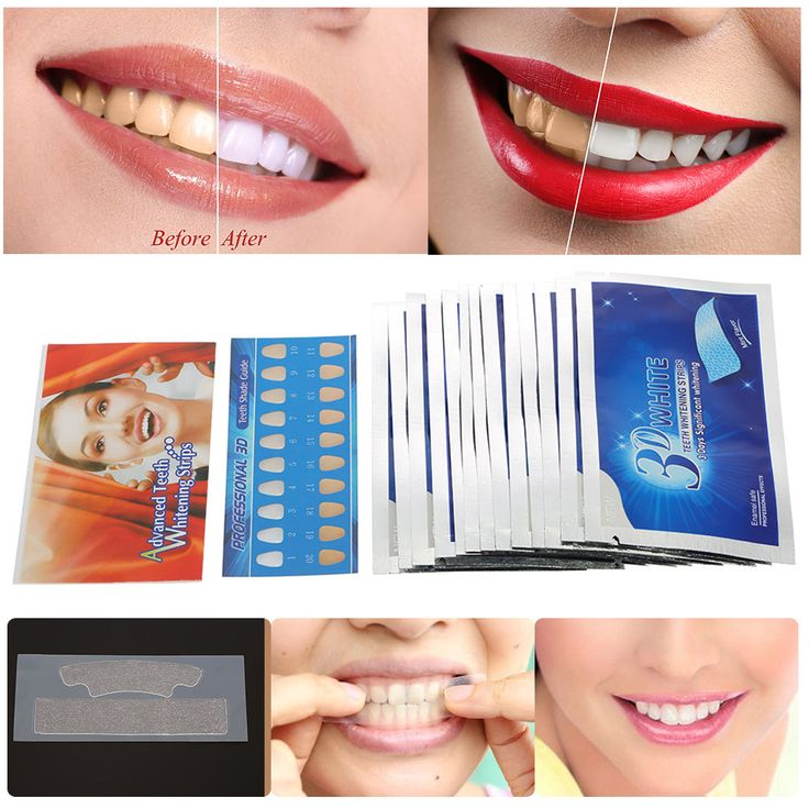 28Pcs/14Pair 3D White Gel Teeth Whitening Strips Oral Hygiene Care Double Elastic Teeth Strips Whitening Dental Bleaching Tools-in Teeth Whitening from Beauty & Health on Aliexpress.com | Alibaba Group
