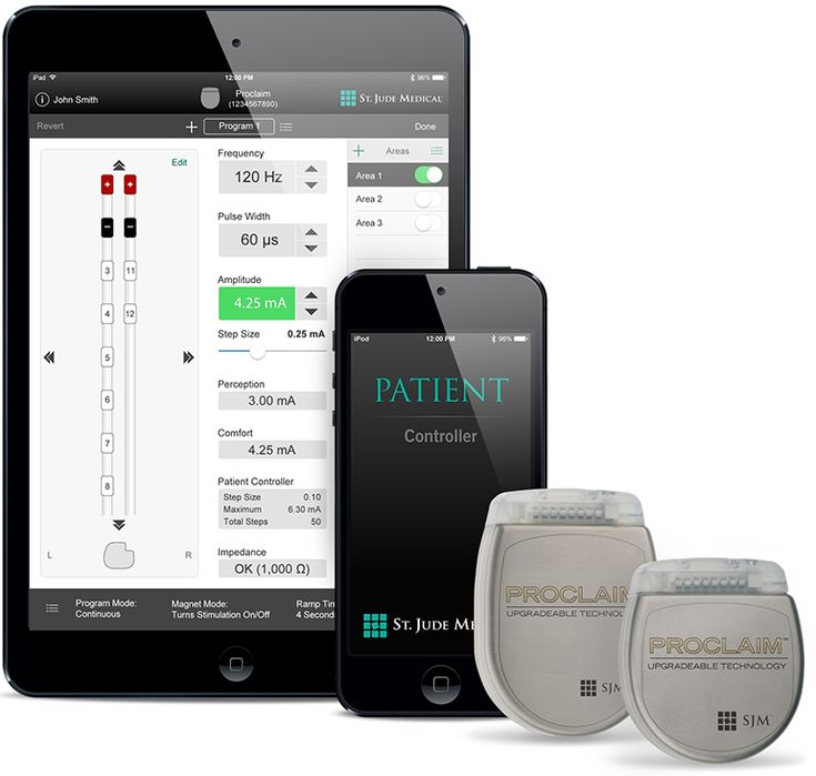 Spinal Cord Stimulator that doesn't need charging