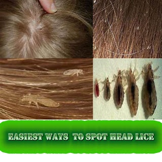 Natural Ways To Remove Hair Lice