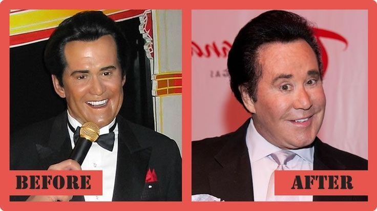Wayne Newton Plastic Surgery Before And After Wayne Newton Plastic Surgery –