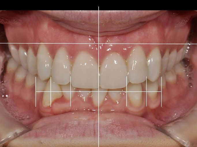 Planning a Smile Makeover