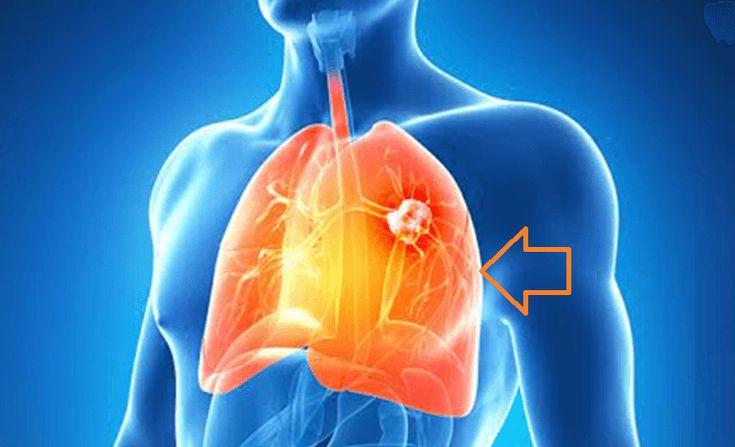 9 signes de cancer du poumon à ne pas ignorer ! Attention !