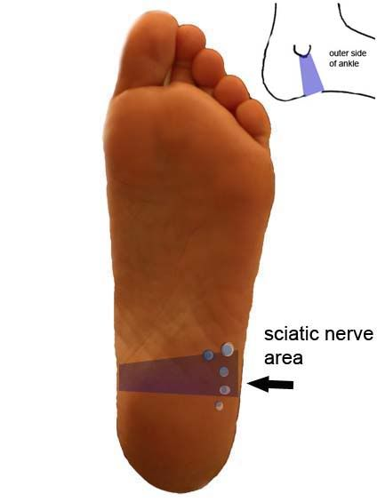 Reflexology Points for Sciatica
